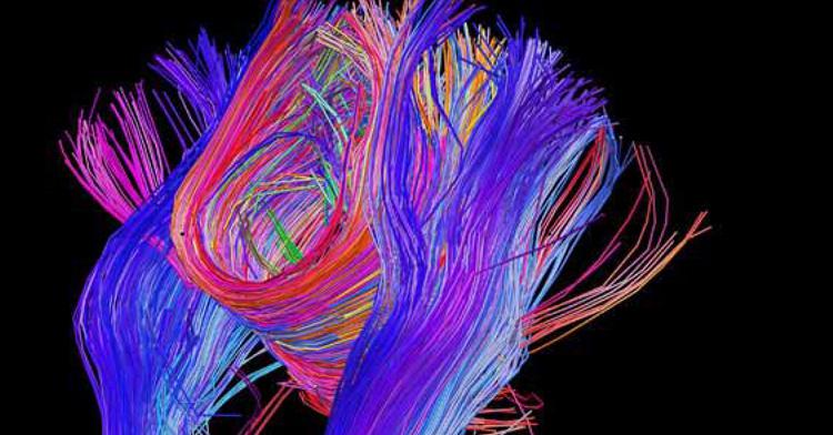 Pesquisa Bipolar: Avanços em Neurociências e Genética